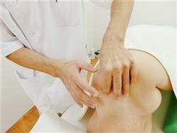 頚椎ヘルニアの鍼灸治療画像