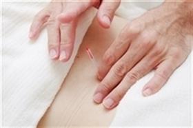 頚椎ヘルニア鍼灸治療の手元の画像
