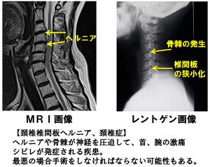頚椎ヘルニア画像