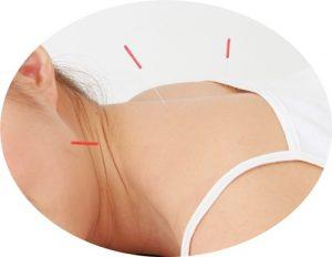自律神経の調節鍼灸