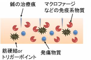 鍼治療の免疫作用