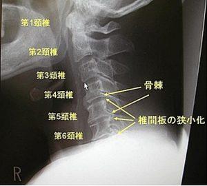 頚椎症レントゲン写真