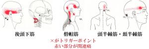 後頭神経痛トリガーポイント