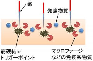 鍼の免疫強化